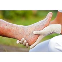 Żylaki, czyli poszerzone naczynia żylne występujące najczęściej na nogach, którym mogą towarzyszyć stany zapalne i zakrzepica oraz przebarwienia skóry, są problemem co czwartego Polaka