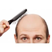 Problem łysienia dotyka coraz młodsze osoby. Powód? To nie tylko predyspozycje genetyczne, ale też ciągle wzrastające tempo życia i przewlekły stres.