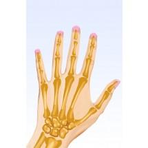 Przy osteoporozie zwykły upadek na równej drodze z podparciem się ręką, powoduje złamanie nadgarstka.
