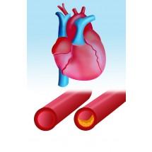 Zwężenie nawet jednej, stosunkowo drobnej tętnicy, może doprowadzić do ogólnoustrojowej katastrofy. Stąd choroba wieńcowa stanowi duże zagrożenia dla życia