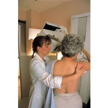Co prawda liczba zachorowań na raka piersi wzrasta, ale odsetek zgonów – na przestrzeni ostatnich lat – albo pozostaje na tym samym poziomie, albo nawet nieznacznie się zmniejsza.