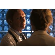 Rokowanie w udarze niedokrwiennym zależy od rozległości i miejsca niedokrwienia tkanki mózgowej oraz od czasu jego trwania. Dlatego jak najszybciej pacjent powinien znaleźć się w szpitalu.