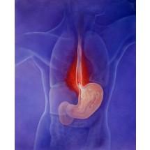 Podstawowym objawem podrażnienia przełyku przez kwaśny sok żołądkowy jest zgaga. Nie można jej samemu łagodzić. Leki alkalizujące przynoszą chwilową ulgę, ale pogłębiają chorobę!