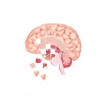 Chorobę Alzheimera mi.n. charakteryzują zaburzenia pamięci, rozumienia, myślenia, liczenia, mowy, możliwości uczenia się.