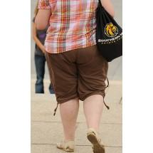 Nadwaga i otyłość to poważne czynniki ryzyka przewlekłej niewydolności żylnej